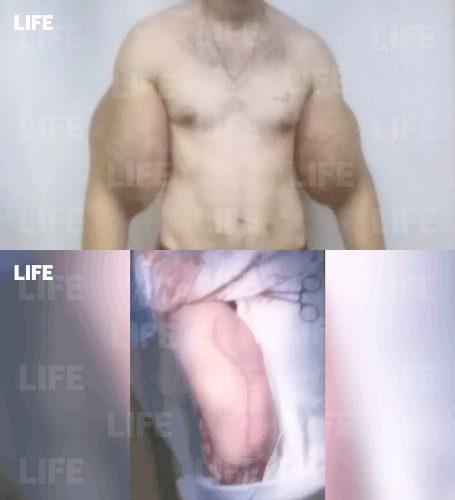 Фотографии Кирилла Терешина перед операцией и во время операции